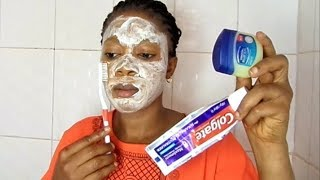 I Applied Colgate Toothpaste An Vaseline On My Face In One Night The Next Day This What Happen