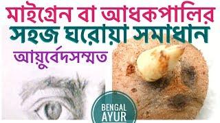 মাইগ্রেন থেকে মুক্তির উপায় | মাথা ব্যথা থেকে মুক্তির ঘরোয়া উপায় | How To Cure Migraine In Bangla