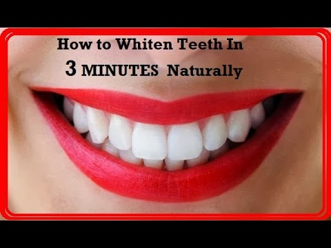 How To Naturally Whiten Your Teeth In 3 Minutes At Home Induced Info