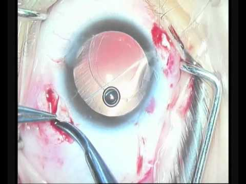 scleral fixation of foldable IOL in the sulcus above the decentered bag