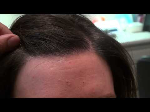 Female Hairline Lowering Results Close Up via Hair Transplant in Dallas, Texas