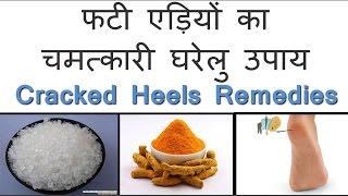 फटी एड़ियों का चमत्कारी घरेलु उपाय।। Home Remedies for Cracked Heel treatment