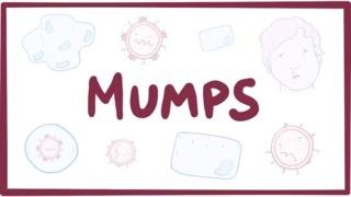 Mumps - symptoms, diagnosis, treatment, pathology