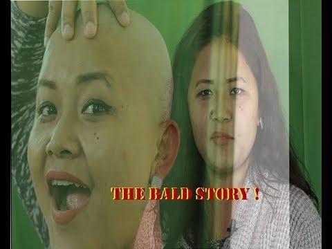 Xxx Mp4 The Bald Story 3gp Sex