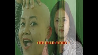 The Bald Story !