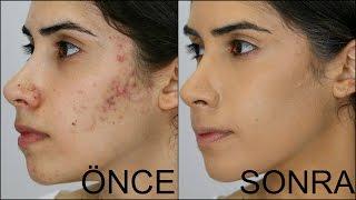 Sivilce-Akne ve Sivilce Lekesi Nasıl Kapatılır? Ⅰ How to Cover Acne & Acne Scars