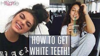 WHITE TEETH IN 1 WEEK?! ft. Hailey Sani
