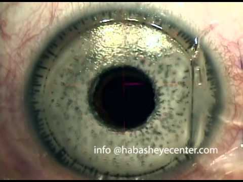 Lasik Post Bright ocular Artificial Iris Implatation