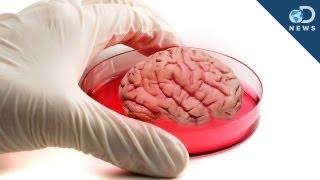 """Mini Human """"Brain"""" Grown In Lab"""