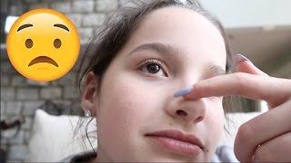 Annie's First Pimple? 😟 (WK 329.2) | Bratayley