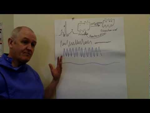 ECG (EKG), Sinus rhythm and abnormalities