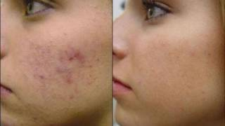 DermTV - Treating Post Acne Brown Spots (Hyperpigmentation) [DermTV.com Epi # 248]