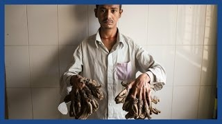 'Tree man' Abul Bajandar set for life-changing surgery in Bangladesh