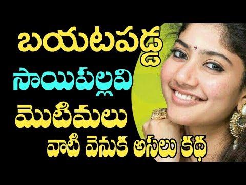 Xxx Mp4 బయటపడ్డ సాయి పల్లవి పింపుల్స్ రహస్యం Fidaa Movie Heroine Sai Pallavi Pimples Secrets Motimalu 3gp Sex