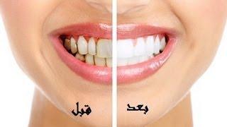 أفضل وأسرع طريقة لتبييض الاسنان وازالة رائحة الفم مضمونة وغير مكلفة وطبيعية