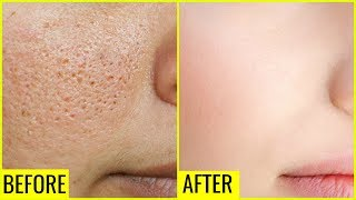 How to Get Rid of Large OPEN PORES Permanently | Anaysa