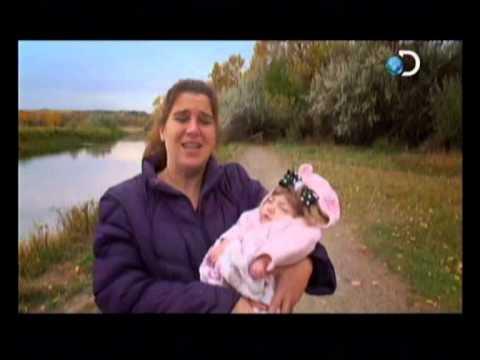 Anomalias Medicas Mi niño de 40 años Parte 1 Discovery Channel