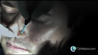 mole removal surgery,  quick and easy / see for yourself.