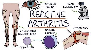 Reactive Arthritis: Visual Explanation for Students