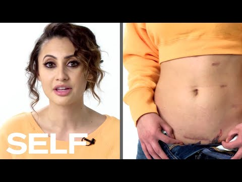 Francia Raisa Explains How She Became Selena Gomez's Kidney Donor | Body Stories | SELF
