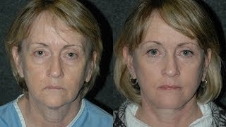 Facelift Surgery Before and After and Eyelid Lift on 60 Year Old Woman | NYC Best Facelift Surgeon D