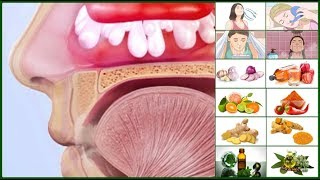 How To Cure Nasal Polyps Without Surgery : 15 Most Effective Home Remedies For Nasal Polyps