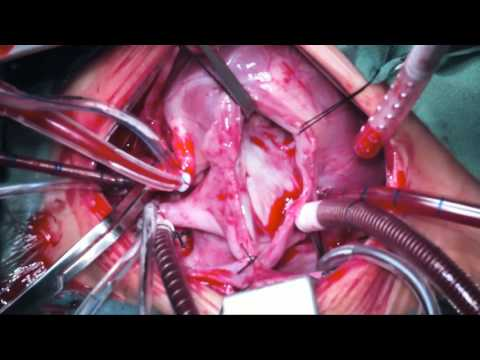 Xxx Mp4 Biventricular Repair Of DORV With Remote VSD And Side By Side Great Arteries 3gp Sex