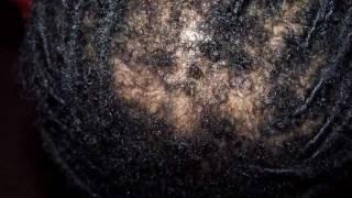 retwisting interlocking tightening dreads locs roots dangers traction alopecia