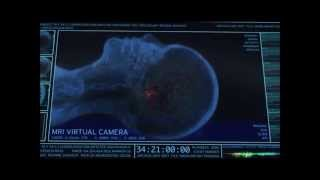 The Walking Dead Brain Scan Scene