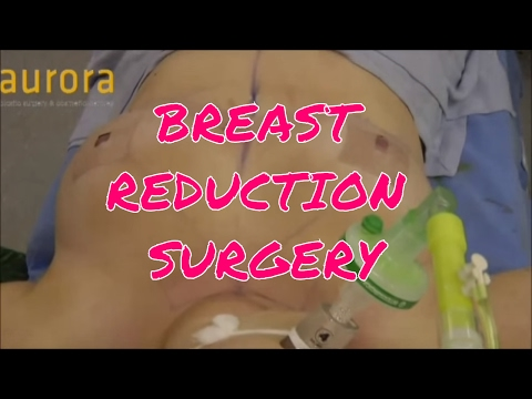 My Breast Reduction - The Surgery
