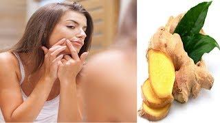 ব্রনের  চিকিৎসায় আদার রস। জেনে নিন এর ব্যাবহার ! Treatment of Acne with ginger