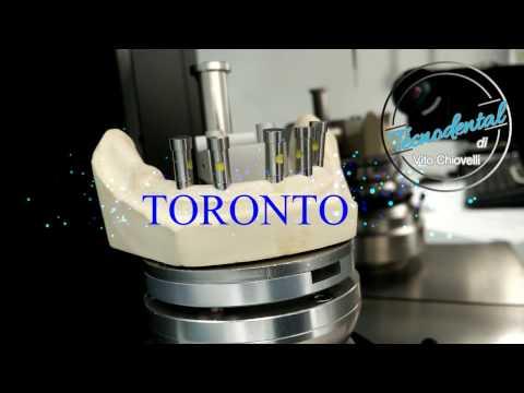 Xxx Mp4 TORONTO Hybrid Scan DOF FREEDOM HD RENISHAW TECNODENTAL Di Vito Chiovelli 3gp Sex