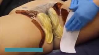 Bikini brazilian waxing  4