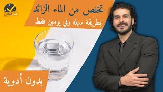 ٢٨- التخلص من الماء الزائد بالجسم في يومين| بدون ادوية_اسبابه وعلاجه الفعال والسريع