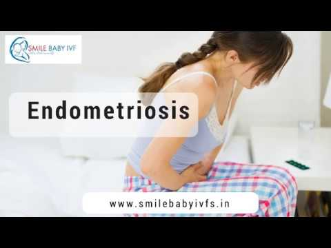 Endometriosis Treatment in Bangalore | Irregular Periods Treatment | Fertility Center in India