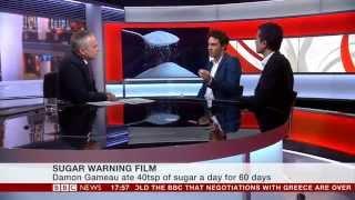 Dr. Aseem Malhotra Urges President Obama To Watch 'That Sugar Film'