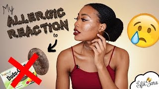 I USED BLACK SOAP AND BROKE OUT IN HIVES! | EfikZara