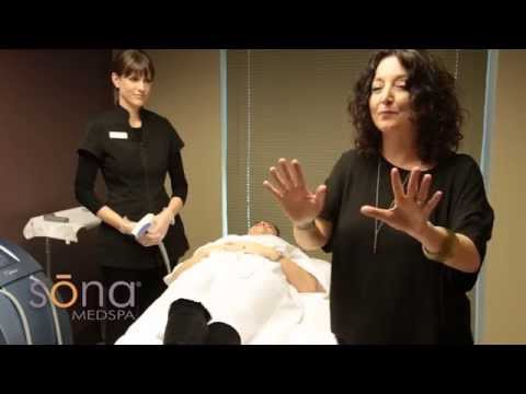 Tighten Loose Skin & Get Rid of Cellulite at Sona
