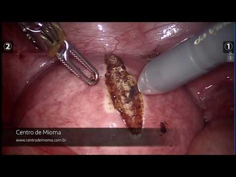 Cirurgia de Miomectomia Robótica Centro de Mioma