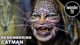 Catman: The Man Who Became A Cat & Tragic Death!