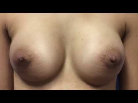 Breast Augmentation with Silicone Implants Before & After Photos | La Nouvelle Medical Spa, Ventura