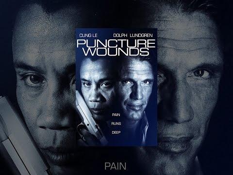Xxx Mp4 Puncture Wounds 3gp Sex