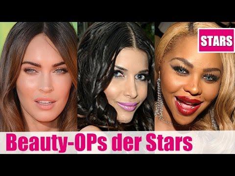 Die EXTREMEN OPs der Stars! Lippen, Brüste & Wangenimplantate & Co.