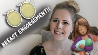 BREAST ENGORGEMENT + Clogged ducts RELIEF!! | Mama Chats