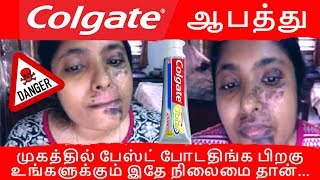 Colgate for face in tamil I beauty tips in tamil I alagu kurippu I Toothpaste for face in tamil