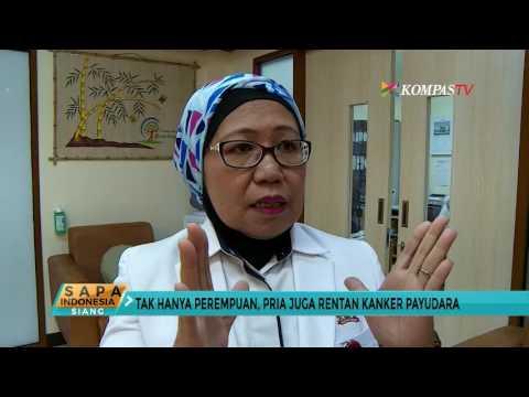 Deteksi Kanker Payudara dengan Teknik 'Sadari'