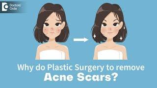 Can Plastic Surgery remove acne scars? - Dr. Urmila Nischal | Doctors' Circle