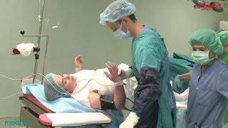 Naşterea prin cezariană | Jurnalul unei gravide