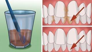طريقة إزالة الرواسب البكتيرية من داخل الأسنان بطريقة سهلة و غير مكلفة دون الذهاب إلى طببيب الأسنان !