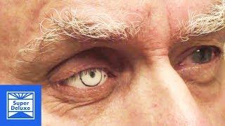 Making Prosthetic Eyes | Stoned Mode